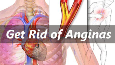How to Get Rid of Anginas Easily| Home Remedies For Angina | Natural Cures For Angina Pain