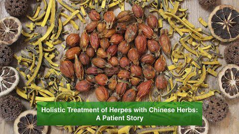 Holistic Treatment of Herpes with Chinese Herbs: A Patient Story