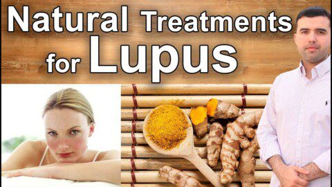 The Best Natural Treatments for Lupus – What Few Know